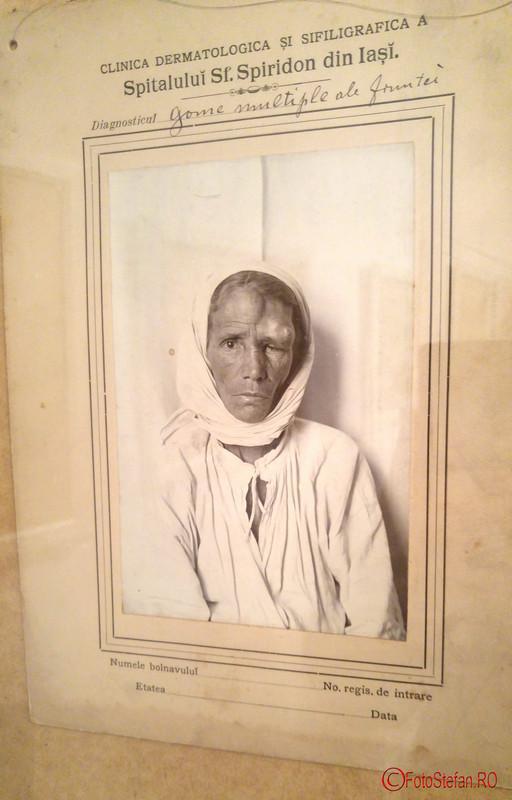 expozitia Medicina în fotografia de secol XIX