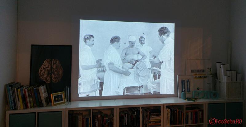 poze prima auto-operaţie de hernie din lume