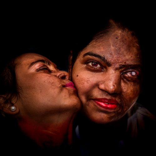 poza portrait fete indience victime atac acid Debdatta Chakraborty