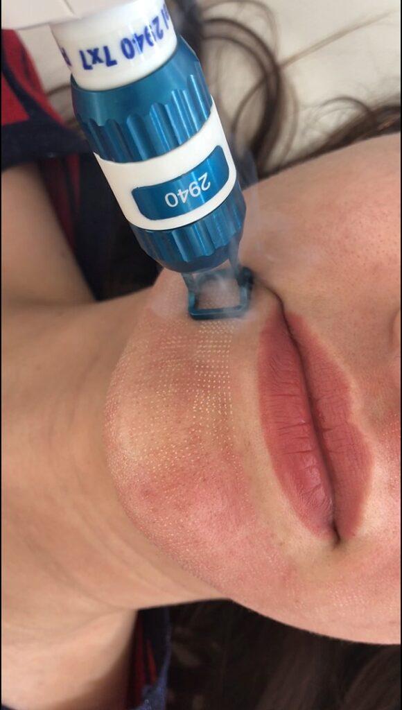 tratament laser polri dilatati